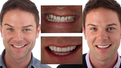 Facial Smile Design
